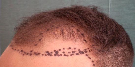 χάραξη μεθόδου δράσης για μεταμόσχευση και μετεμφύτευση μαλλιών