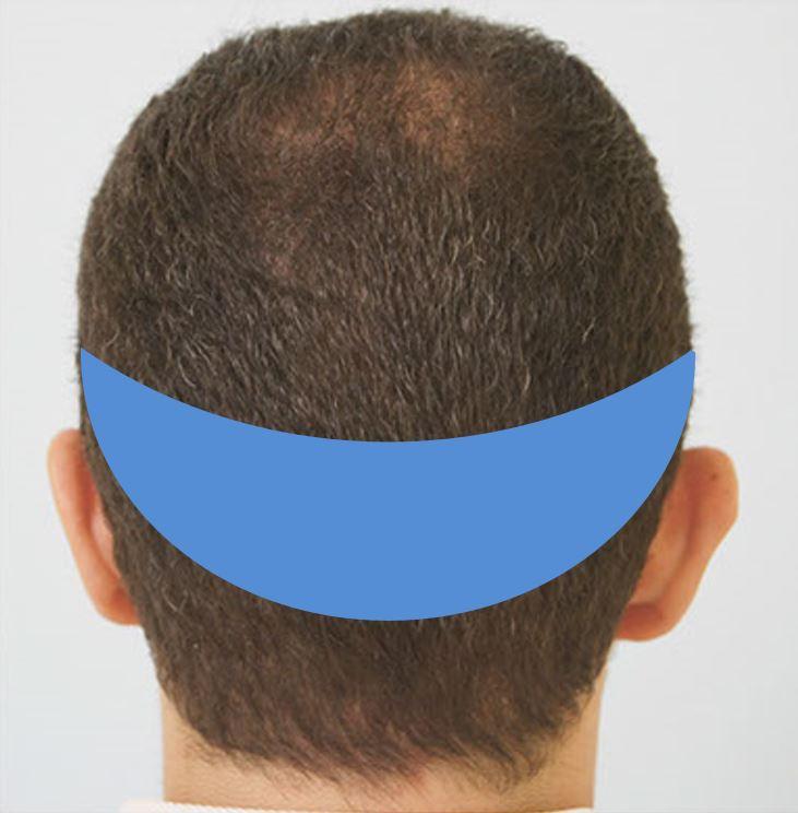 Δότρια περιοχή - βασικές αρχές της μεταμόσχευσης μαλλιών