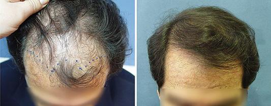 πύκνωση μαλλιών σε ορισμένες μόνο περιπτώσεις