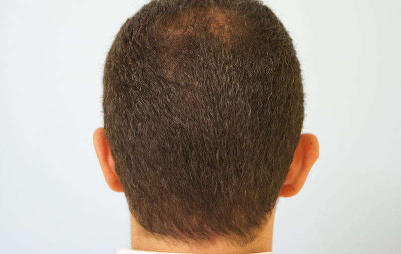 πύκνωση μαλλιών και μεταμόσχευση τριχοθυλακίων