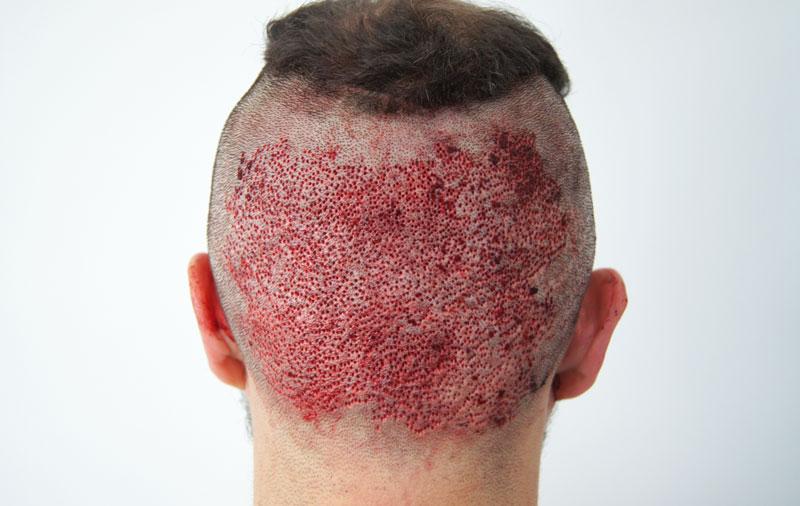 μέθοδος μεταμόσχευσης μαλλιών