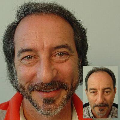 αληθινά περιστατικά μεταμόσχευσης μαλλιών