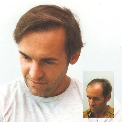 αληθινό περιστατικό μεταμόσχευσης μαλλιών - προσθήκη τριχοθυλακίων