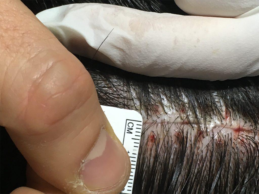 αποτελέσματα από τη μεταμόσχευση μαλλιών FUT
