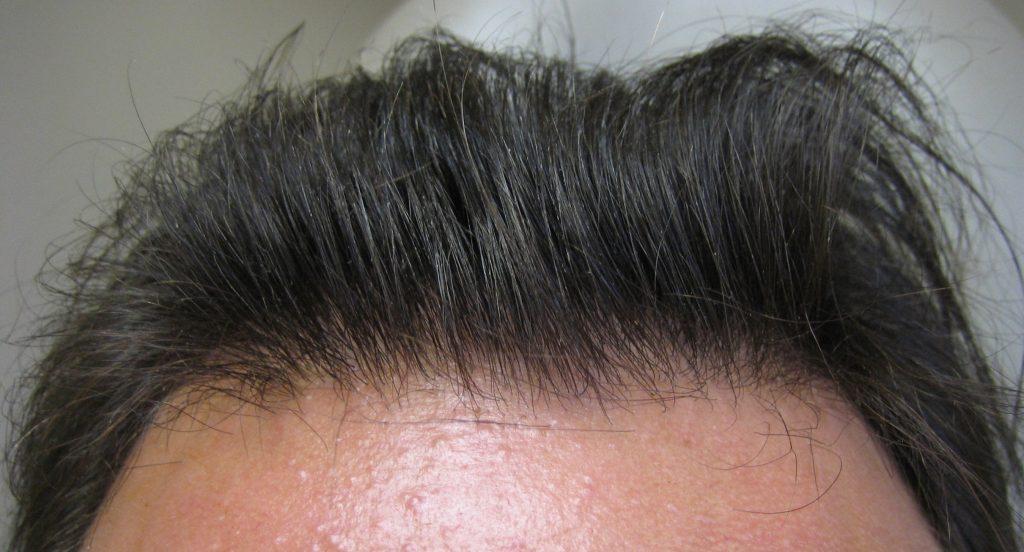 αποτελέσματα μεταμόσχευσης μαλλιών hairline