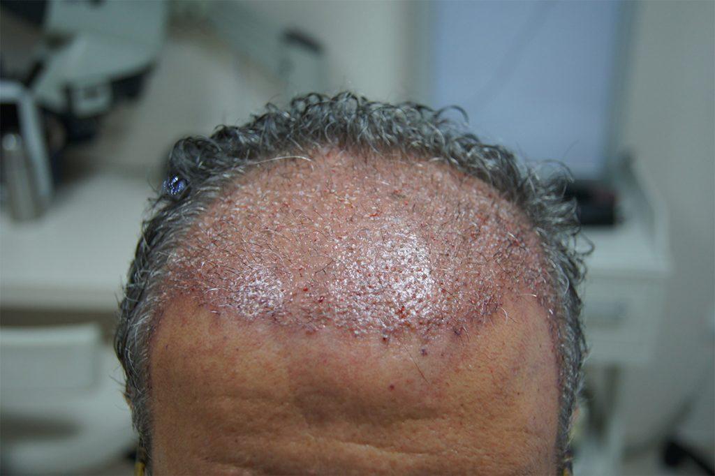 μεταμόσχευση μαλλιών FUT αρχικά αποτελέσματα