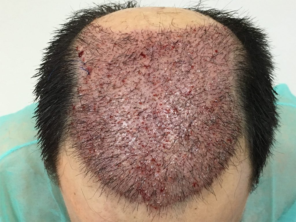 εικόνα τριχωτού πριν τη μεταμόσχευση