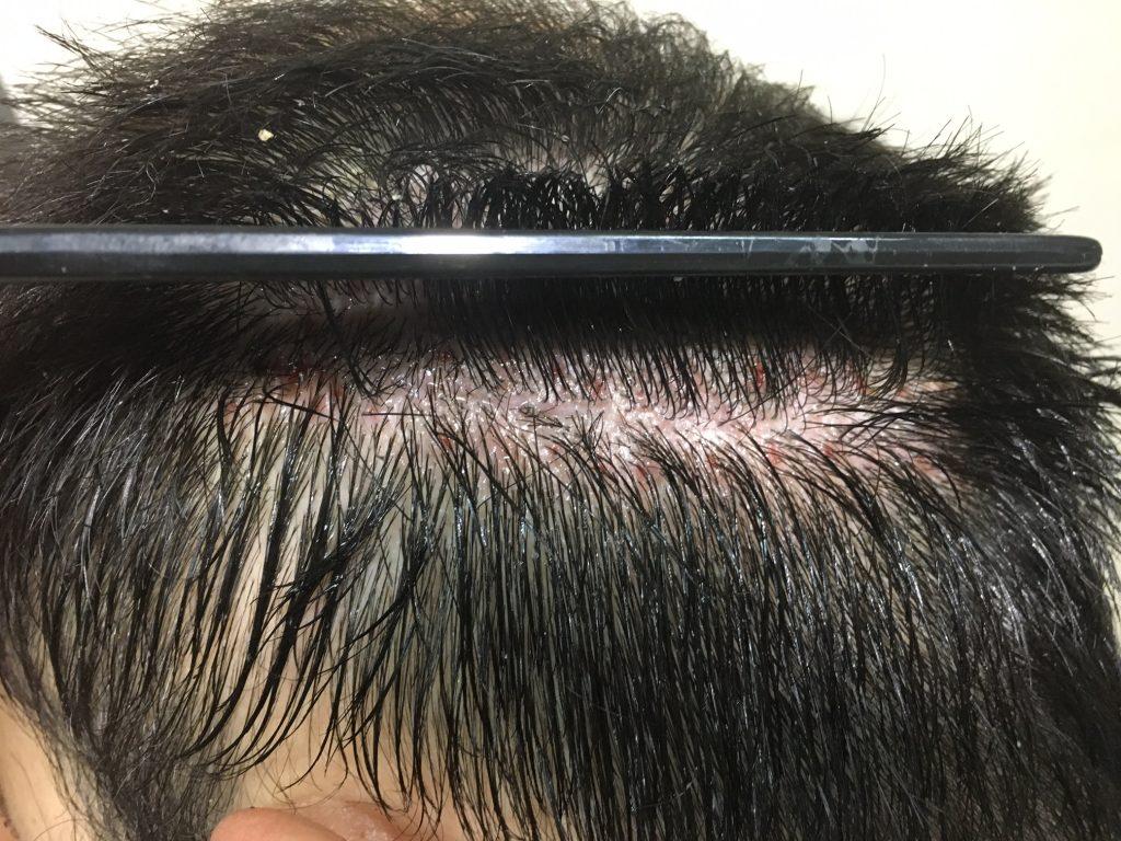 εξέταση περιοχής για μεταμόσχευση μαλλιών FUT