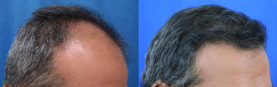 μεταμόσχευση μαλλιών FUT στην κλινική μας