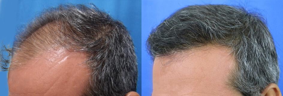 μεταμόσχευση μαλλιών FUT αποτελέσματα