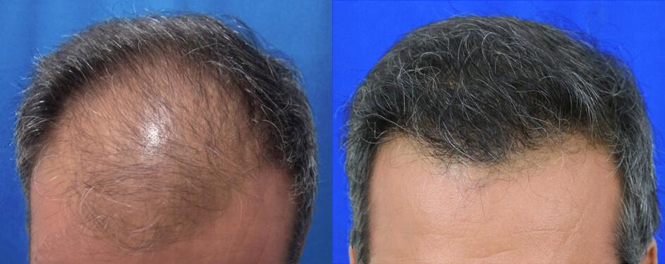 μεταμόσχευση μαλλιών FUT πριν και μετά