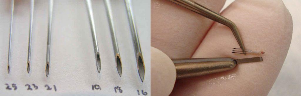 μέθοδοι για τη μεταμόσχευση μαλλιών FUT