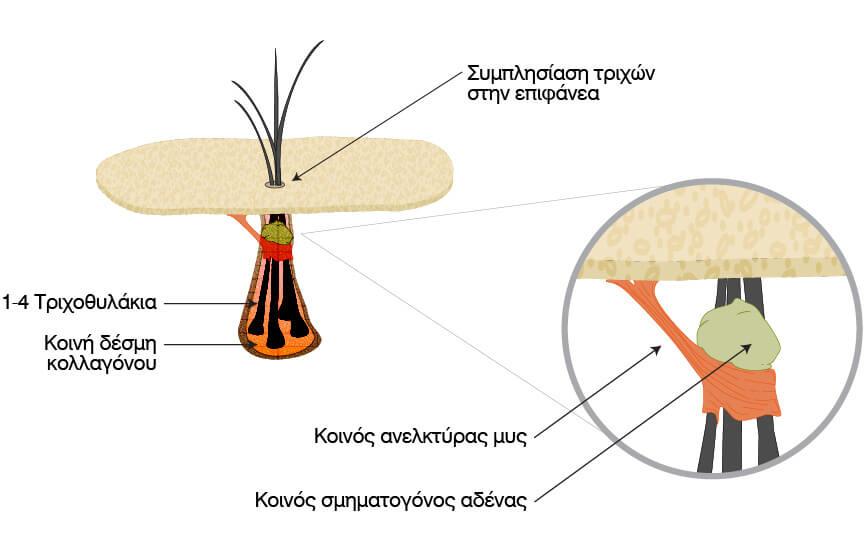 μέθοδος μεταμόσχευσης μαλλιών FUT