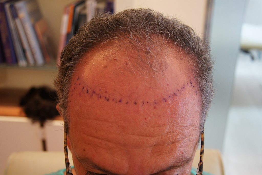 περιστατικό μεταμόσχευσης μαλλιών FUT