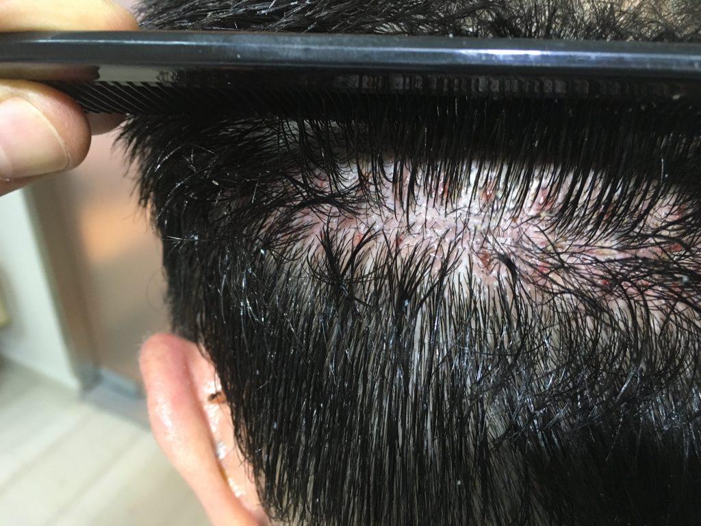 σημάδια μεταμόσχευσης μαλλιών FUT