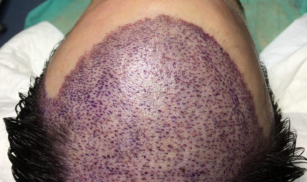 σχεδιασμός μεταμόσχευσης μαλλιών FUT