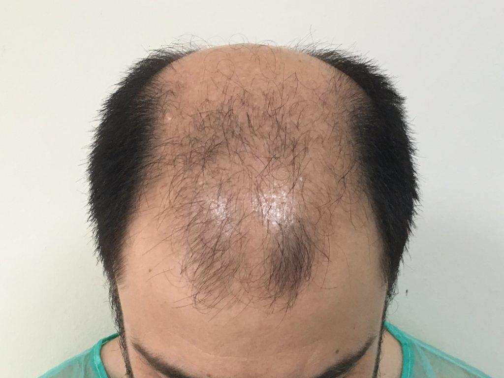 σχεδιασμός μεταμόσχευσης μαλλιών πραγματικό περιστατικό