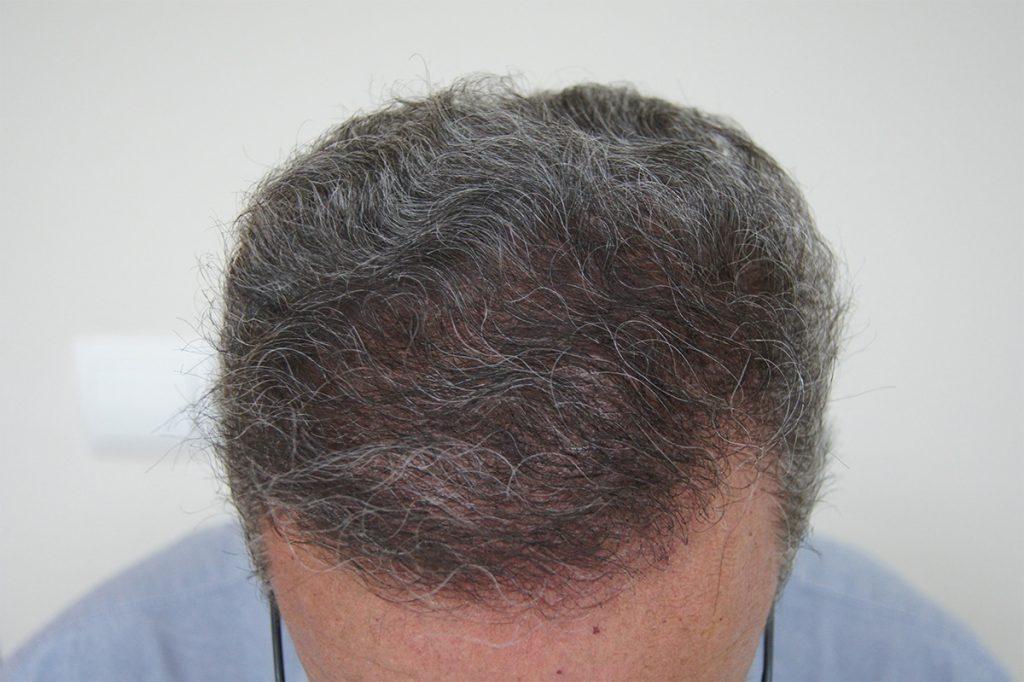 τελική εικόνα μεταμόσχευσης μαλλιών FUT