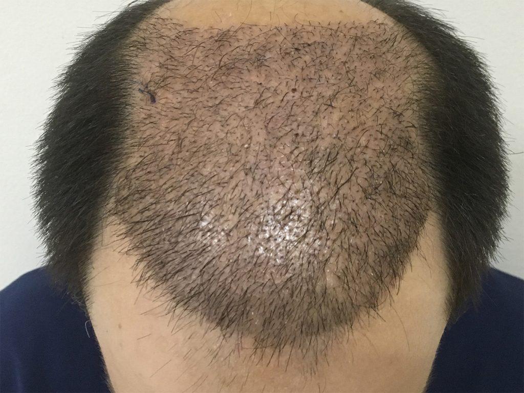τελικό αποτέλεσμα μεταμόσχευσης μαλλιών FUT