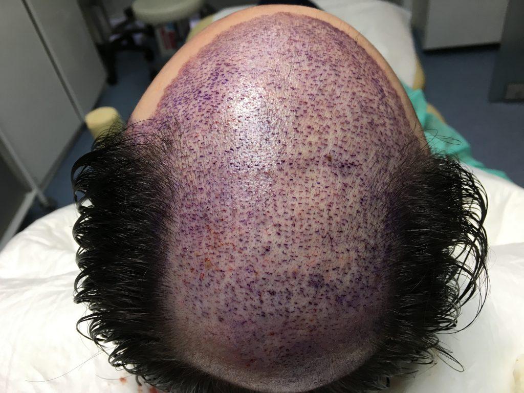 τελικός σχεδιασμός επέμβασης μεταμόσχευσης μαλλιών FUT