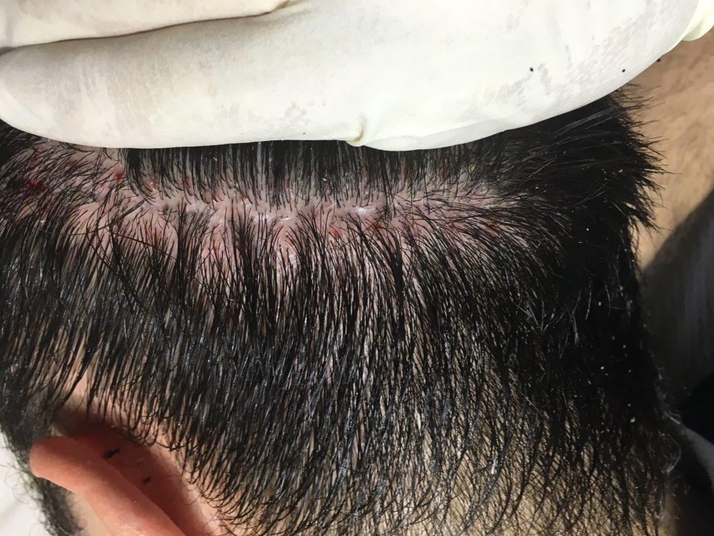 τεχνικές λεπτομέρειες μεταμόσχευσης μαλλιών FUT
