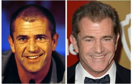 μεταμόσχευση μαλλιών Mel Gibson