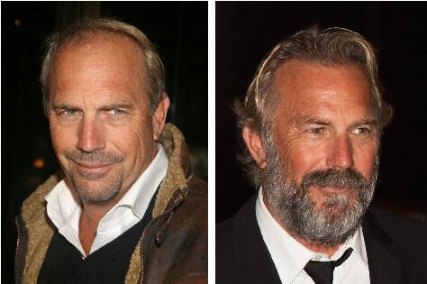 μεταμόσχευση μαλλιών και celebrities