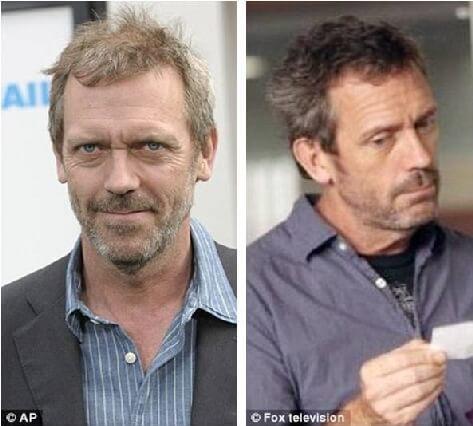 μεταμόσχευση μαλλιών και celebrities αποτελέσματα