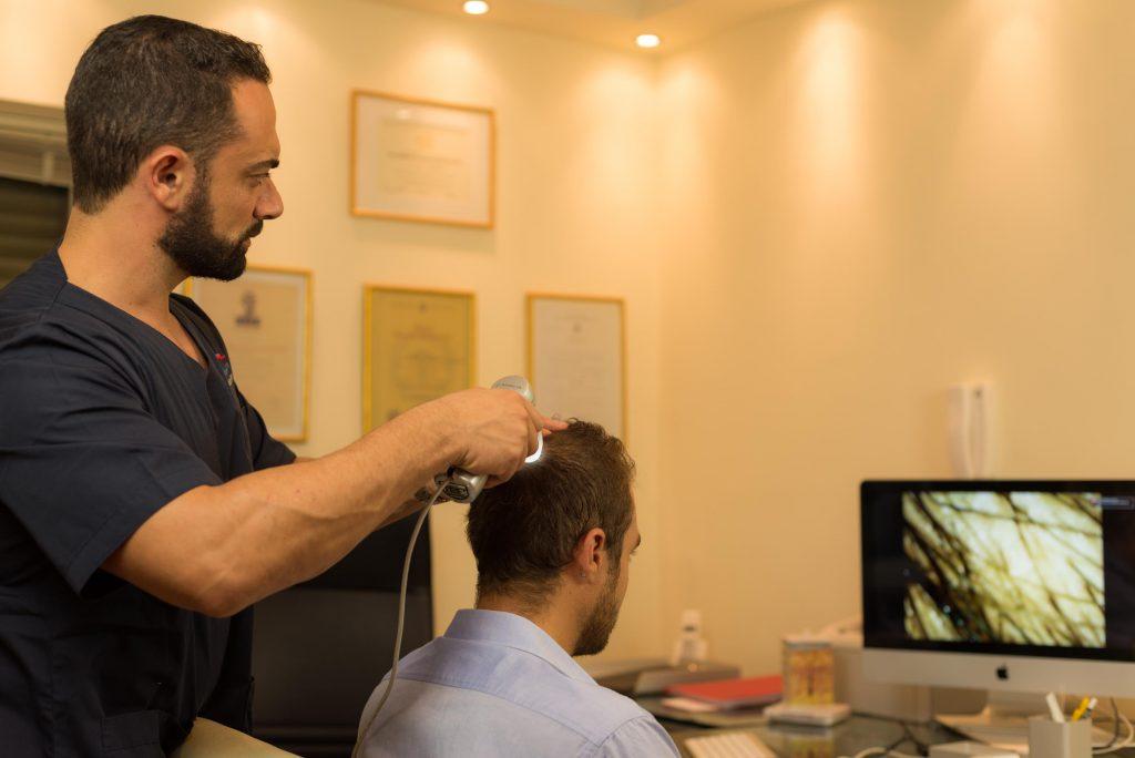 Μεταμόσχευση Μαλλιών στο Vertex Anastasakis Hair Clinic