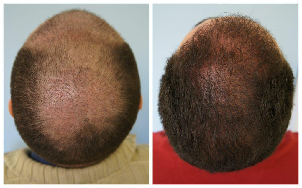 Μεταμόσχευση Μαλλιών στο Vertex πριν και μετά