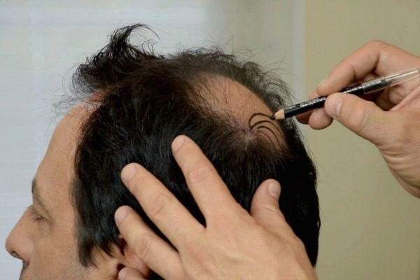 στρατηγική μεταμόσχευσης μαλλιών