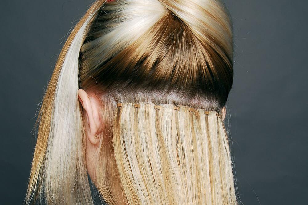 τριχόπτωση και μεταμόσχευση μαλλιών στις γυναίκες