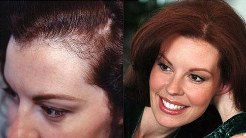 Τριχόπτωση μετά την εγκυμοσύνη Anastasakis Hair Clinic