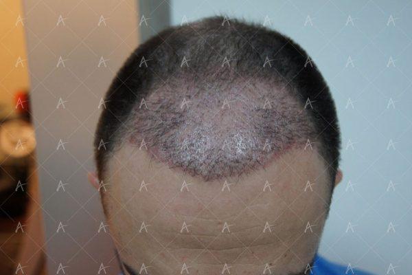 Εικόνα λήπτριας και δότριας περιοχής 31 ημέρες μετά την μεταμόσχευση 1/5 ασθενής μεταμόσχευσης μαλλιών