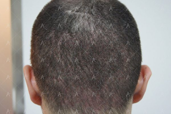 Εικόνα λήπτριας και δότριας περιοχής 31 ημέρες μετά την μεταμόσχευση 4/5 ασθενής μεταμόσχευσης μαλλιών