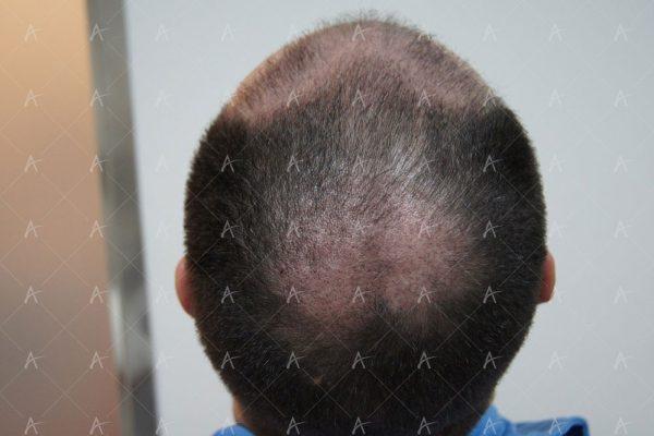 Εικόνα λήπτριας και δότριας περιοχής 31 ημέρες μετά την μεταμόσχευση 2/5 ασθενής μεταμόσχευσης μαλλιών