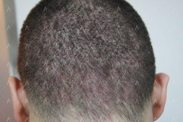Εικόνα λήπτριας και δότριας περιοχής 31 ημέρες μετά την μεταμόσχευση 5/5 ασθενής μεταμόσχευσης μαλλιών
