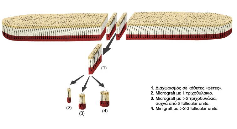 metamosxeysi-malliwn-tropoi-proseggisis-1