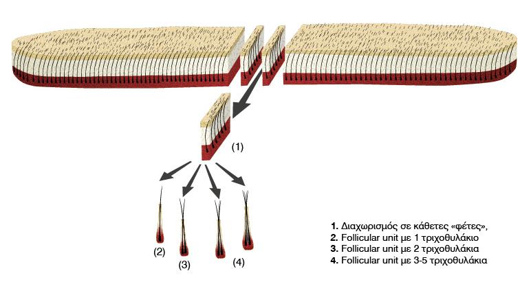 metamosxeysi-malliwn-tropoi-proseggisis-2