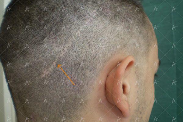 Κούρεμα πριν την 2η συνεδρία 3/3 ασθενής μεταμόσχευσης μαλλιών