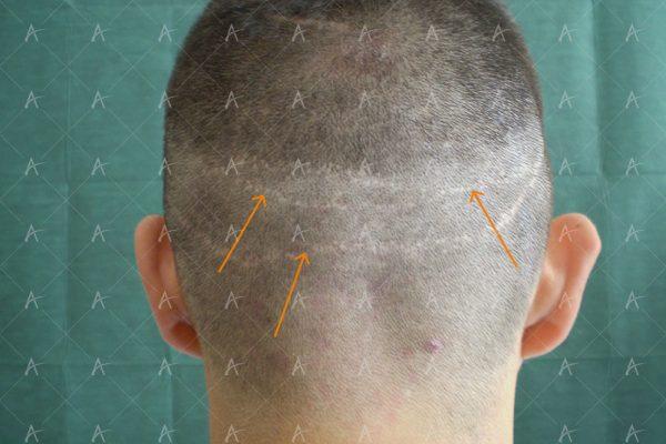 Κούρεμα πριν την 2η συνεδρία 1/3 ασθενής μεταμόσχευσης μαλλιών
