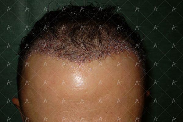 Πριν και μετά τη 2η συνεδρία FUE, 1200 μοσχευμάτων 4/6 ασθενής μεταμόσχευσης μαλλιών