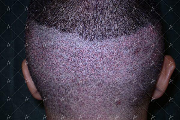 Πριν και μετά τη 2η συνεδρία FUE, 1200 μοσχευμάτων 6/6 ασθενής μεταμόσχευσης μαλλιών