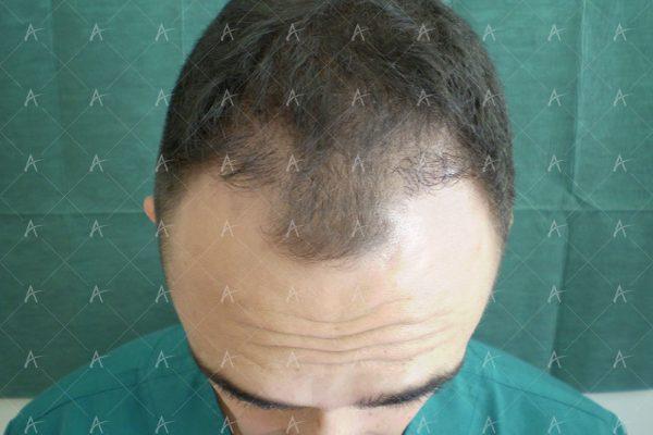 Πριν και μετά τη 2η συνεδρία FUE, 1200 μοσχευμάτων 2/6 ασθενής μεταμόσχευσης μαλλιών
