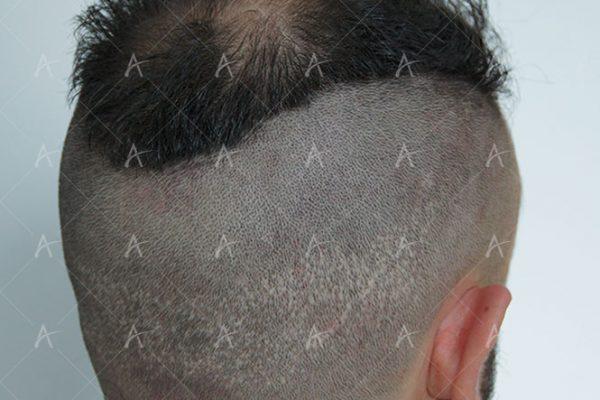 Κούρεμα δότριας περιοχής 4/4 ασθενής μεταμόσχευσης μαλλιών