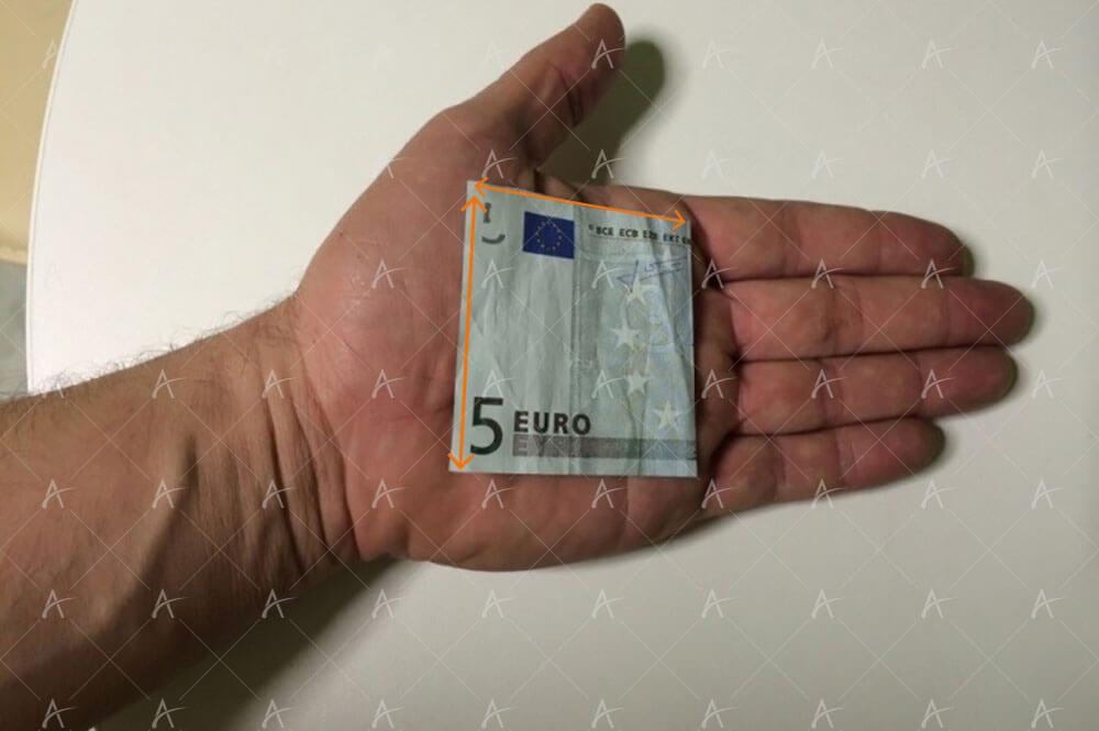 5€ ασθενής μεταμόσχευσης μαλλιών