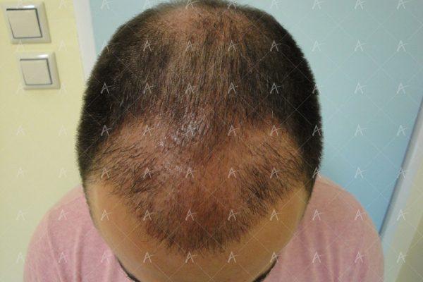 Εικόνα λήπτριας και δότριας περιοχής 2 μήνες μετά την επέμβαση 1/7 ασθενής μεταμόσχευσης μαλλιών