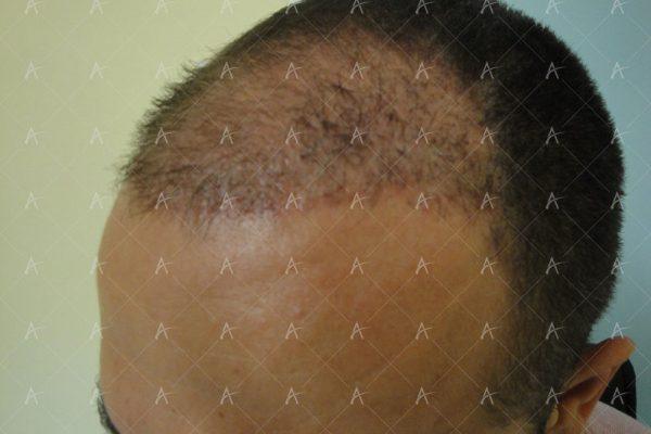 Εικόνα λήπτριας και δότριας περιοχής 2 μήνες μετά την επέμβαση 3/7 ασθενής μεταμόσχευσης μαλλιών