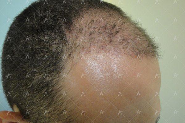 Εικόνα λήπτριας και δότριας περιοχής 2 μήνες μετά την επέμβαση 4/7 ασθενής μεταμόσχευσης μαλλιών