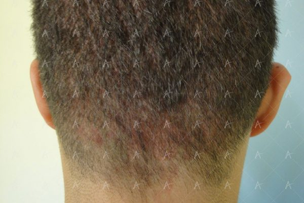 Εικόνα λήπτριας και δότριας περιοχής 2 μήνες μετά την επέμβαση 7/7 ασθενής μεταμόσχευσης μαλλιών